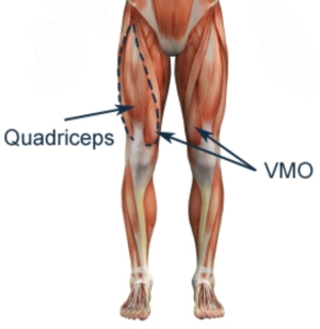 http://www.physioadvisor.com.au/8290850/quadriceps-strengthening-exercises-vmo-strengthe.htm